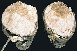 Wilms Tumor Wikipedia