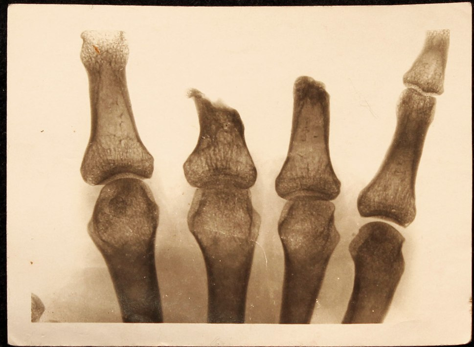 World War I radiography amputee