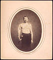 (Shirtless man stands with right arm in brace and harness, g... (3110847168).jpg