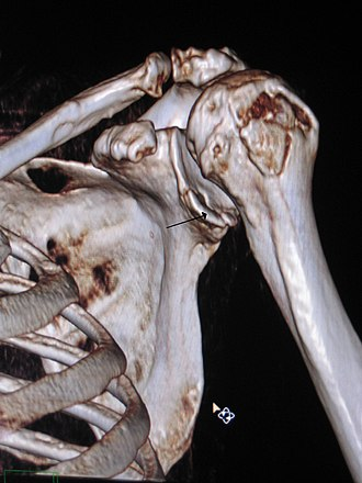 Bankart lesion - Image: 3 D CT reconstruction of Bankart lesion which occurred post anterior shoulder dislocation