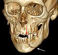 3D CT mandible fracture.jpg