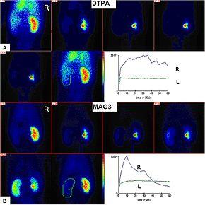 Radioisotope renography - Wikipedia