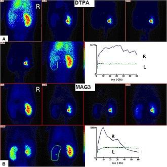 Radioisotope renography - Image: 99m Tc MAG3 and 99m Tc DTPA renogram