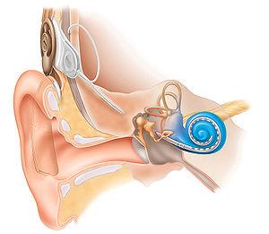 Cochleaimplantat