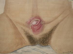 Bladder exstrophy - Watercolour drawing of ectopia vesicae in a man aged 23 years, after operation