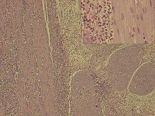 condizione rara ed eterogenea caratterizzata da infiltrazione eosinofila dei tessuti gastrointestinali a chiazze o diffusa, descritta per la prima volta da Kaijser nel 1937