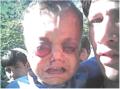 Facial tumor causes an eye bulge.png