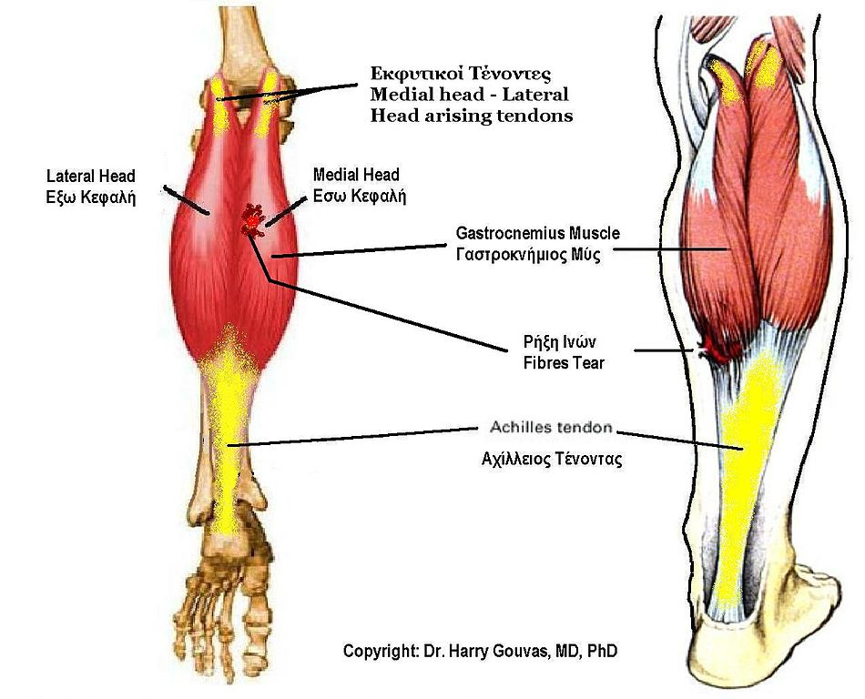 File:Gastrocnemius muscle.jpg - Wikimedia Commons
