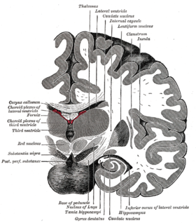 Coronal brain section