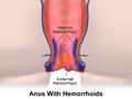 Hemorrhoids.png