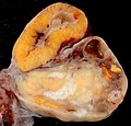ovary with corpus luteum