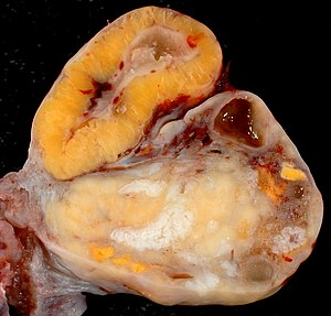Corpus luteum - Image: Human Ovary with Fully Developed Corpus Luteum