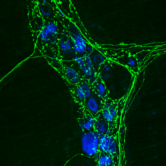 Immunocytochemistry - Immunocytochemistry labels individual proteins within cells, such as TH (green) in the axons of sympathetic autonomic neurons.