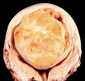 Leiomyoma of the Uterus.jpg