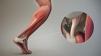 Ligament - Articular ligament.