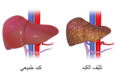 Liver Cirrhosis-ar.png