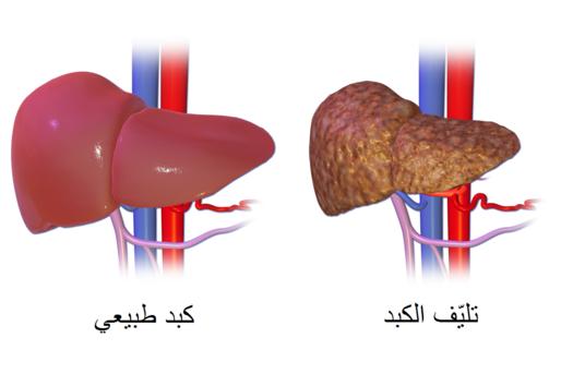 تشمع الكبد Wikiwand