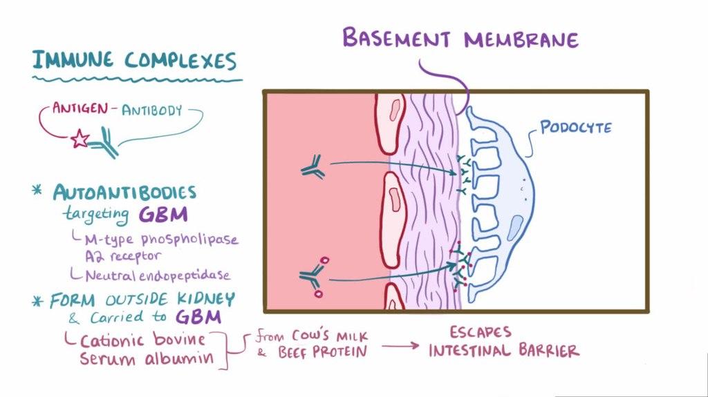 File:Membranous nephropathy.webm - Wikimedia Commons