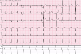 NSR-atrial fusion-AJR-shifting pacemaker.png