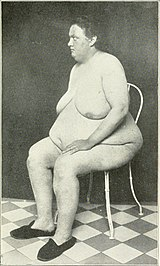 Naked woman with lipomatous Frohlich's syndrome.jpg