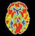 PET Normal brain.jpg