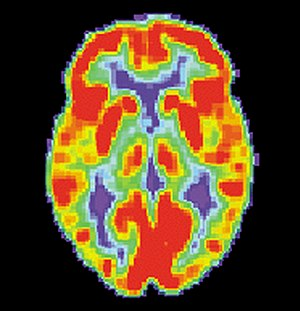 Brain positron emission tomography - Image: PET Normal brain