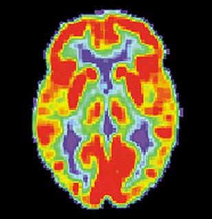 Brain positron emission tomography