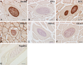 Parasite160010-fig4 - Lectins in Paralichthys olivaceus infected by Kudoa septempunctata - Lectin histochemistry.png