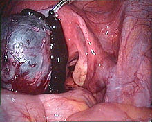 Endoscopic Image Of A Ruptured Chocolate Cyst In Left Ovary
