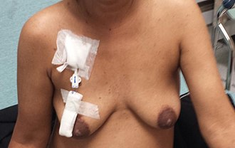 Hickman line - Permacath for dialysis
