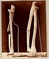 Photographs of surgical cases and specimens (1865) (14739864956).jpg