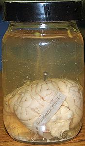 A preserved pig brain.