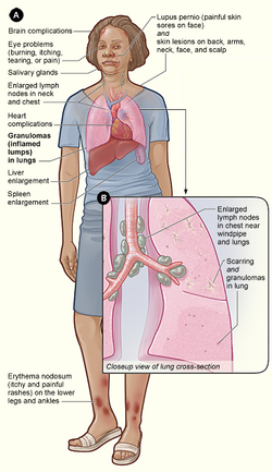 Sarcoidosis Cure