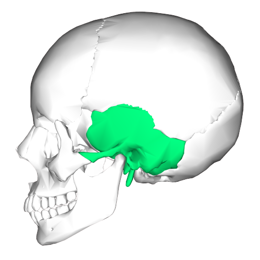 Mastoiditis occurs in the temporal bone of your skull