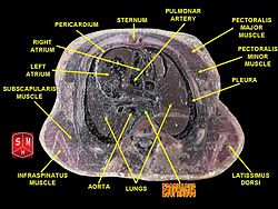 Thorax section 2.jpg