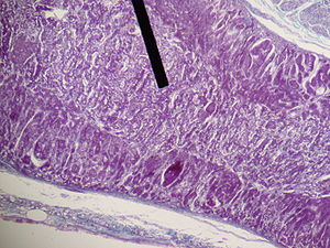 Adrenal medulla - Medullary part of the adrenal gland (on the pointer).
