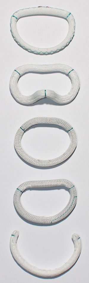 Mitral valve annuloplasty - Examples of commercially available annuloplasty rings. From top: St. Judes Rigid Saddle Shaped Ring, Edwards Geoform, Edwards Physio, Edwards ETlogix, Edwards Cosgrove.