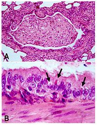 Canine distemper pathology.jpg
