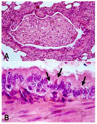 Canine distemper - A. Lung lesion in an African wild dog B. Viral inclusion bodies