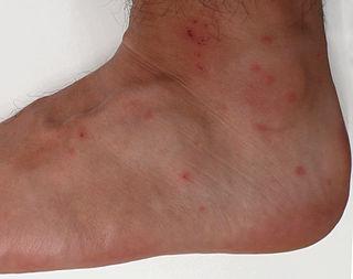 Trombiculosis mite infestation that involves rash caused by Leptotrombidium deliense
