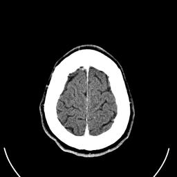 Computed tomography of human brain (28).png