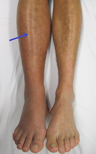 A right-sided acute deep vein thrombosis (to the left in the image). The leg is swollen and red due to venous outflow obstruction. Deep vein thrombosis of the right leg.jpg