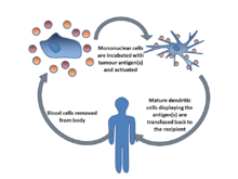 Blood cells are removed from the body, incubated with tumour antigen(s) and activated.  Mature dendritic cells are then returned to the original cancer-bearing donor to induce an immune response.