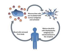 Cancer Immunotherapy Wikipedia