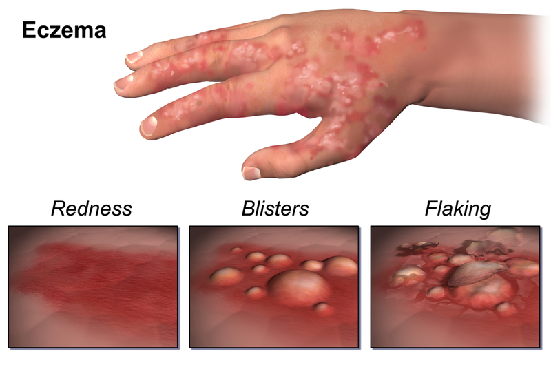 eczema signs and symptoms