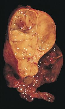 Encapsulated thymoma.jpg
