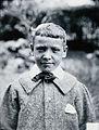 Gloucester smallpox epidemic, 1896; J.R. Evans, aged 10 Wellcome V0031454.jpg