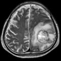 Granulomatous amoebic encephalitis.png