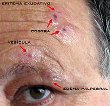 Pictures Of Zoster Herpes