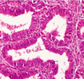 Histopathology of well-differentiated endometrioid adenocarcinoma.png
